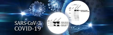 SARS-CoV-2-antibodies_gtx