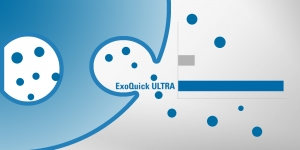 Exosome isolation withExoQuick ULTRA