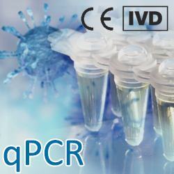 COVID-19 SARS-CoV-2 qRT-PCR Diagnostic Test IVD
